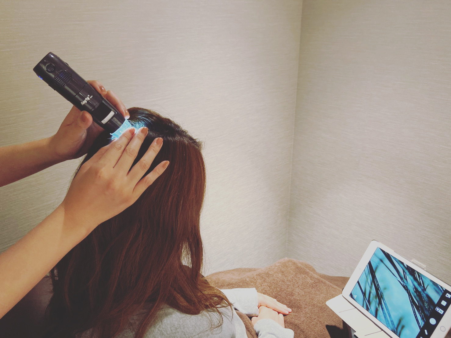 頭皮環境 マイクロスコープ