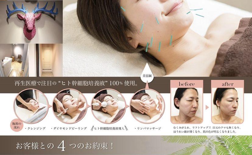 美容鍼 ヒト幹細胞