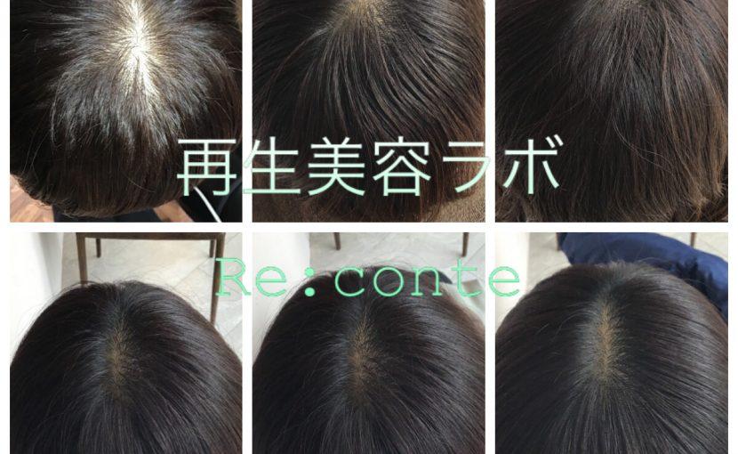 上本町 リコンテ ヘッドスパ ヒト幹細胞培養液 発育毛 薄毛 育毛 女性の薄毛 男性の薄毛
