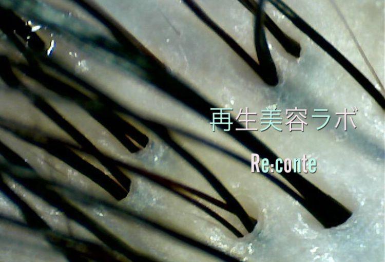 上本町リコンテ ヘッドスパ 時短メニュー 頭皮エステクレンジング